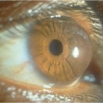 a picture of keratoconus eye disease conical cornea