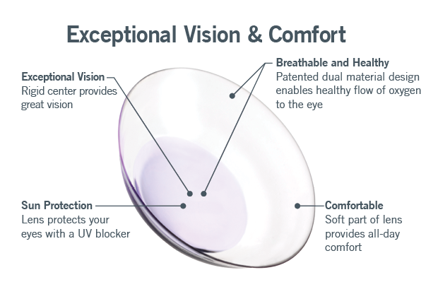 multifocal contact lenses for astigmatism duette multifocal