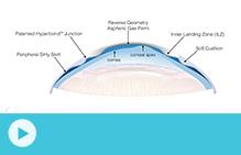 UltraHealth Lens Design