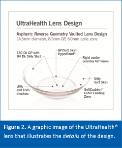 UH FC Lens Design Scleral Lenses