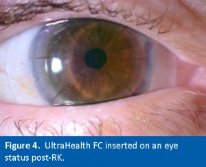 UH-FC on Post-RK Eye Scleral Lenses