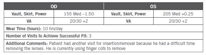 Final Parameters Table CS1 Kristi Rhodes OD Patient DF Farsightedness