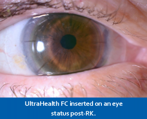 Post-Rk UH FC on Eye for Refractive Eye Surgery Patients
