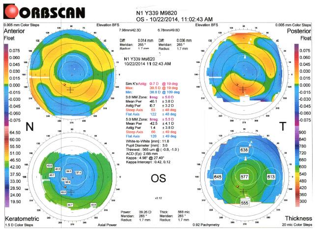 Topography OS CS1 Kristi Rhodes OD Patient DF Farsightedness