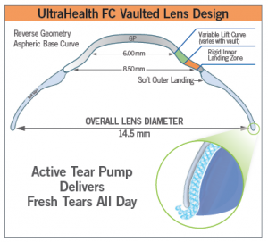 UH FC Vaulted Lens Design for Hybrid Contact Lenses