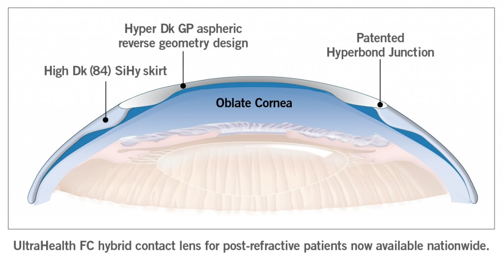 UltraHealth FC Oblate Hybrid Contact Lens Design-Now Available