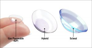 An image with Synergeyes Gas Permeable Contact Lenses, Hybrid Lenses and Scleral