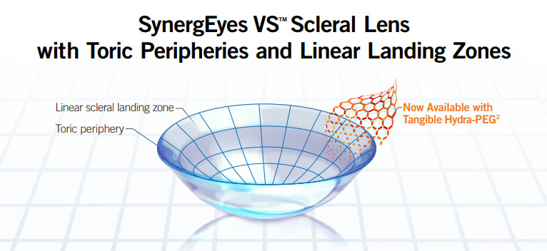SynergEyes VS Scleral Lens