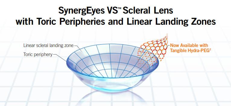 SynergEyes VS Scleral Lens