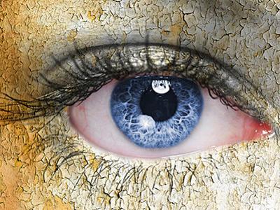 Scleral Lenses for Ocular Surface Disease