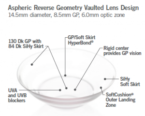 Aspheric Reverse Geometry Vaulted Lens Design